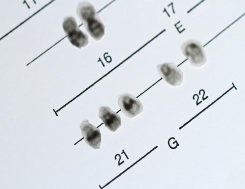 trisomie-21